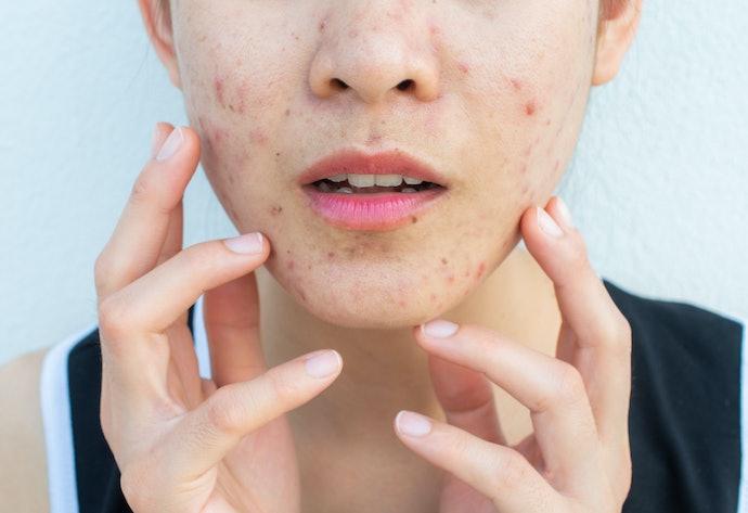 Efek meredakan peradangan untuk merawat kulit berjerawat