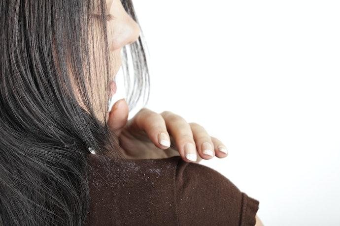 Rambut berketombe, pilih shampoo yang dapat membersihkan dan menyegarkan kulit kepala
