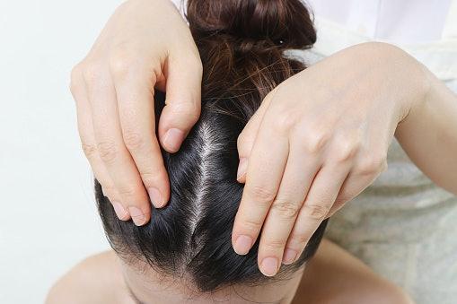 Hindari bahan pemicu iritasi untuk kulit kepala sensitif