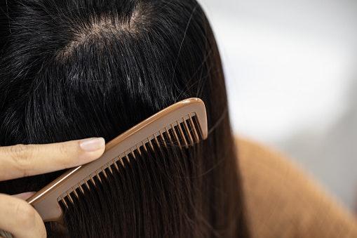 Rambut berminyak, cari yang bisa membersihkan sebum