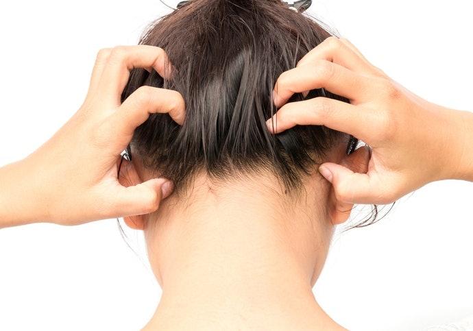 Aplikasikan tonik dalam keadaan rambut 70% kering